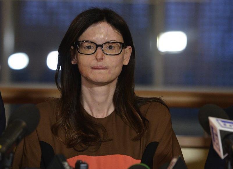 Lucia Annibali ieri nella conferenza stampa al Tribunale di Pesaro dopo la sentenza