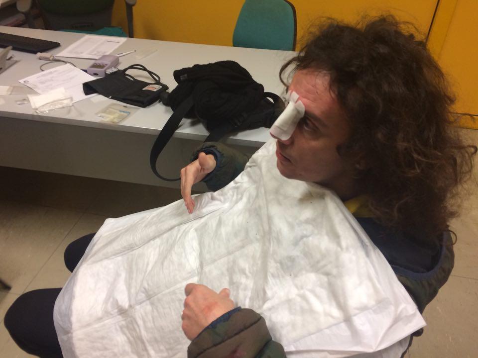 Alessandro Nardella con il setto nasale fratturato